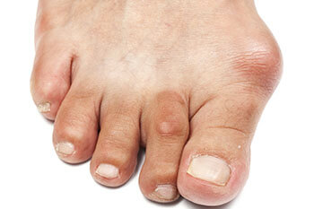 bunions treatment in the West Hollywood, CA 90048 area