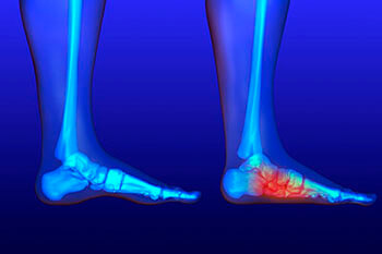 Flat feet and Fallen Arches treatment in the West Hollywood, CA 90048 area
