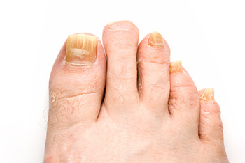 fungus toenails treatment in the West Hollywood, CA 90048 area