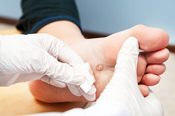 Plantar warts treatment in the West Hollywood, CA 90048 area